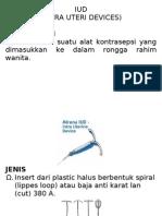Flip IUD
