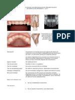 fracturas dentoalveolares