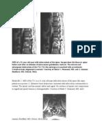 MRI of a 31