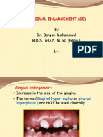 4th L-2, Gingival Enlargement