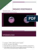 Fistula Traqueo Esofagica