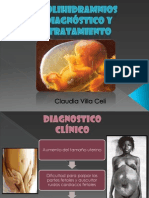Diagnóstico y tratamiento del polihidramnios