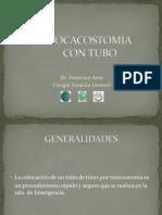 Toracostomia Con Tubo de Torax