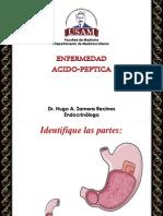 ENFERMEDAD ÁCIDO-PÉPTICA