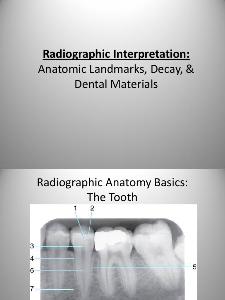 Radiographic Interpretation PPOINT | Dentistry | Mouth