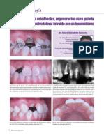 04_Extrusión ortodóncica, regeneración ósea guiada e implante
