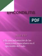 epicondilitis-110226140619-phpapp01