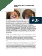 La seguridad y eficacia del minoxidil tópico en el tratamiento de la calvicie de patrón masculino