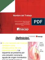 infarto-110528160732-phpapp02