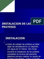 15.-INSTALACION DE LAS PROTESIS.pptx