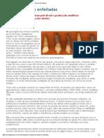 Bocas afiadas e enfeitadas - Revista de História
