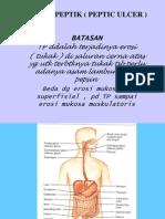 Tukak Peptik ( Peptic Ulcer )