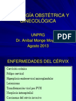 Carcinoma de cérvix