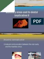 Maxillary Sinus and Its Dental Implication II
