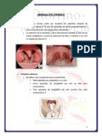 Amigdalitis Cronica
