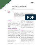Fistules artérioveineuses durales rachidiennes