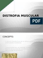 distrofia muscular.pptx