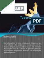 presentacintuberculosis-130123215645-phpapp01
