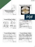 Tratamento de Cárie Através de Preparos e Restaurações de Cavidade Classe II