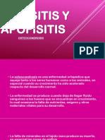 Epifisitis y Apofisitis