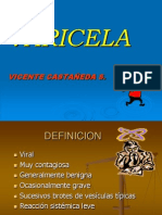 Varicela -- castañeda