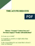 4 26 the Acute Red Eye