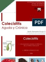 Colecistitis Aguda y Crc3b3nica