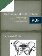 Fracturas de Miembro Inferior