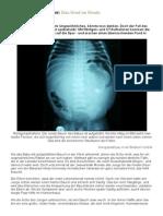 2013-04-20_SpOn_Fötus im Kleinkind.pdf