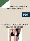 69631371 Ecografia Planos de Corte Ginecologico
