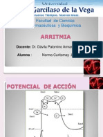 ARRITMIA- Angina de Pecho