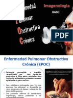 EPOC enfermedad pulmonar obstructiva cronica