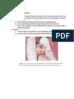 Klasifikasi Dental Karies