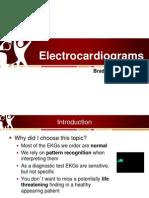 Electrocardiograms in the Pediatric ED