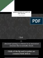 embryogenesis cleft lip palate.pdf