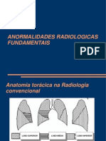 Lesoes-Fundamentais-Pulmonares
