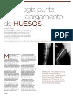 Tecnología punta para el alargamiento de HUESOS | Revista GHQ #16