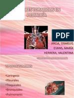 TUMORES TORACICOS EN PEDIATRÍA