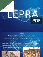 Lepraa