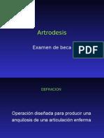 ARTRODESI