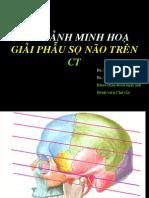CT Giai phau so nao 1.pdf