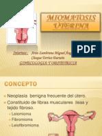Miomatosis Uterina Miguel[2]