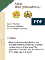vesikolitiasis.pptx