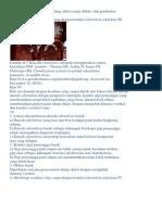 Sistem Klasifikasi Edentulous Sebagian2.docx