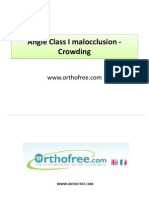 15-Class I Malocclusion Crowding Biprotrusion-orthofree.com