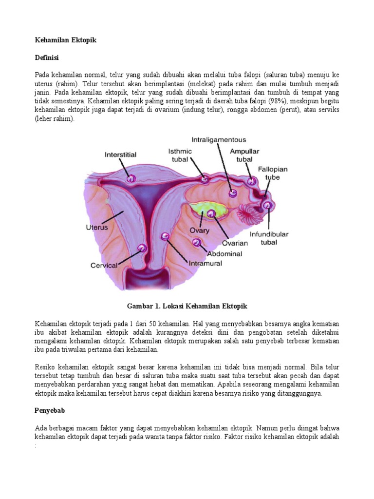 Kehamilan Ektopik Pdf