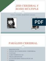 Paralisis Cereblar y Esclerosis Multiple