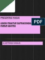 PRESUS FRAKTUR TERBUKA.ppt