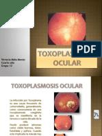Toxoplasmosis Ocular