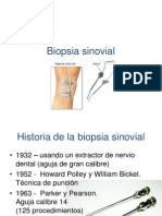 Biopsia sinovial